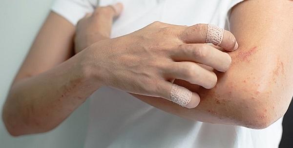 l'huile de colza appliquée à la peau d'eczema