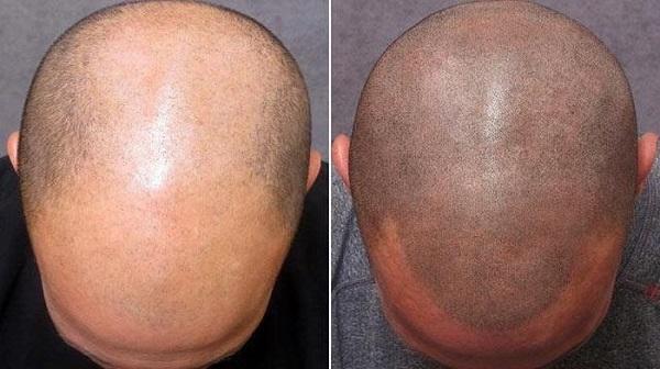 huile de ricin guerir perte de cheveux et calvitie
