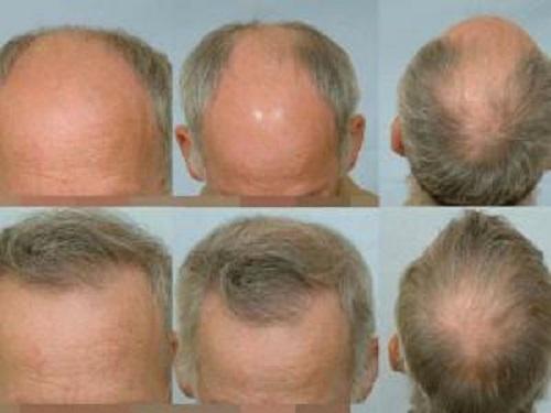 Huile de ricin perte de cheveux notre avis pour lutter contre for Perte de cheveux homme