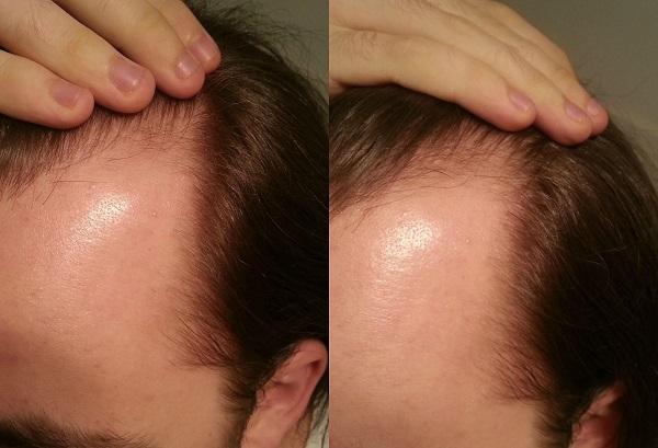 Repousse des cheveux homme huile de ricin